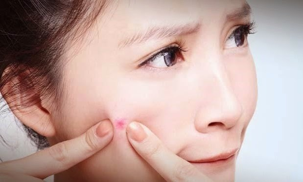 10 Tips Cara Menghindari Jerawat Agar Tidak Muncul Kembali
