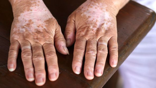 Apa Itu Vitiligo, Penyebab, Gejala dan Cara Pencegahannya