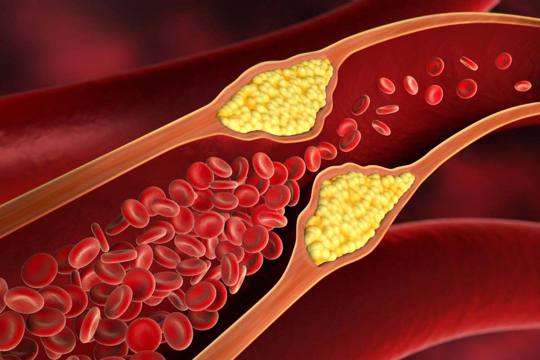 Cara Menurunkan Kadar Kolesterol Dalam Tubuh
