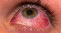 Jenis Penyakit Mata