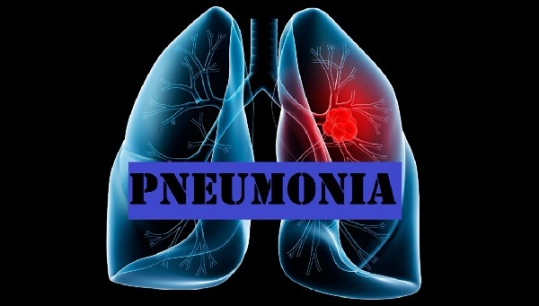 Apa itu Pneumonia ? Penyebab dan Gejalanya