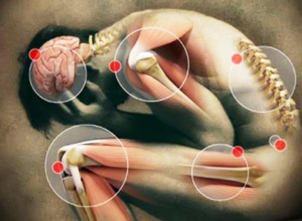 Mengenal Penyakit Asam Urat, Penyebab, Gejala Dan Cara Mengobati