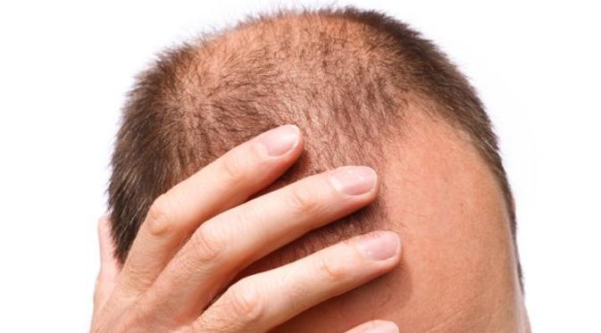Cegah Kebotakan dengan Obat Rambut Rontok Alami