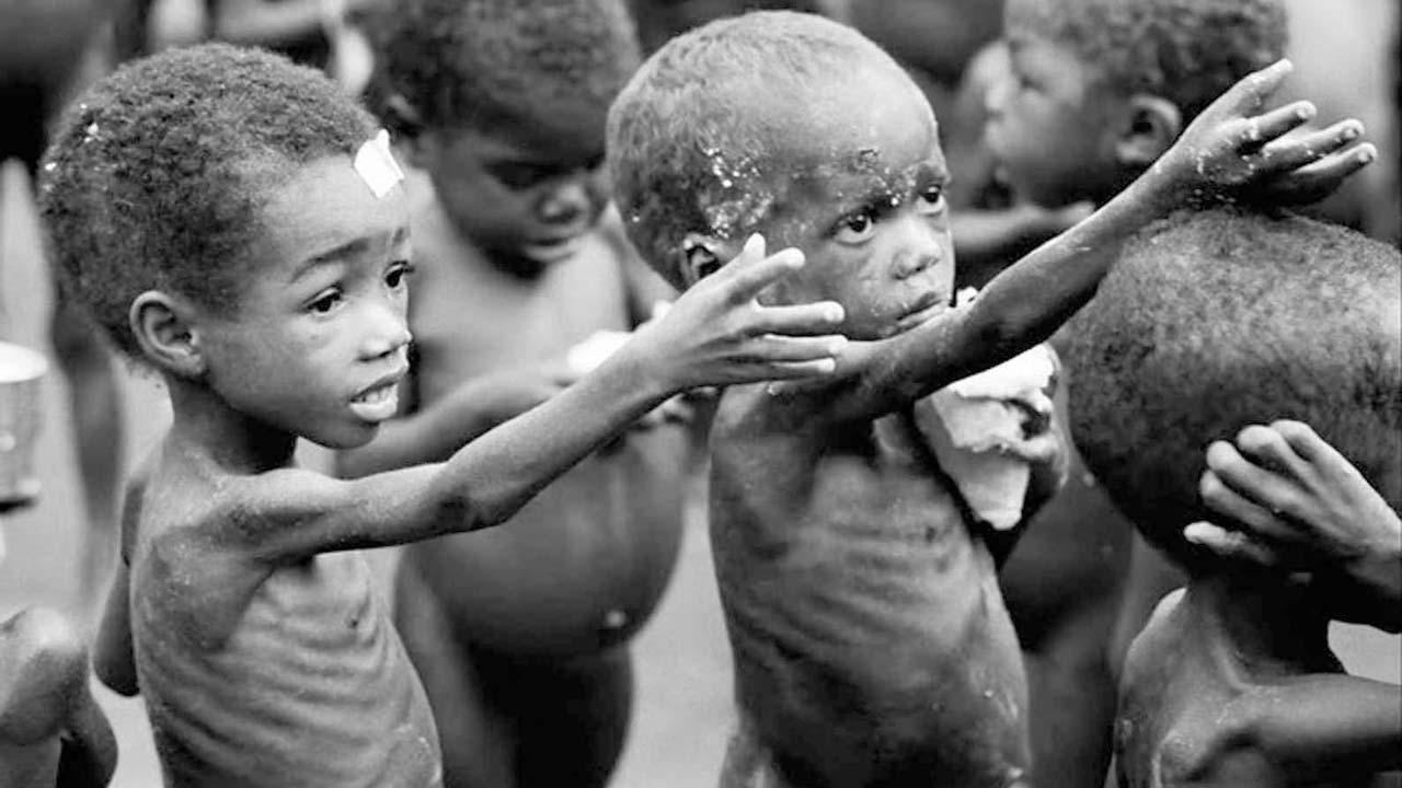 Penyakit Gizi Salah (Malnutrition)