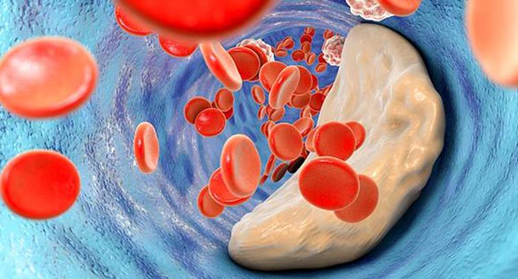 Cara Menjaga Kolesterol Tubuh Agar Tetap Stabil
