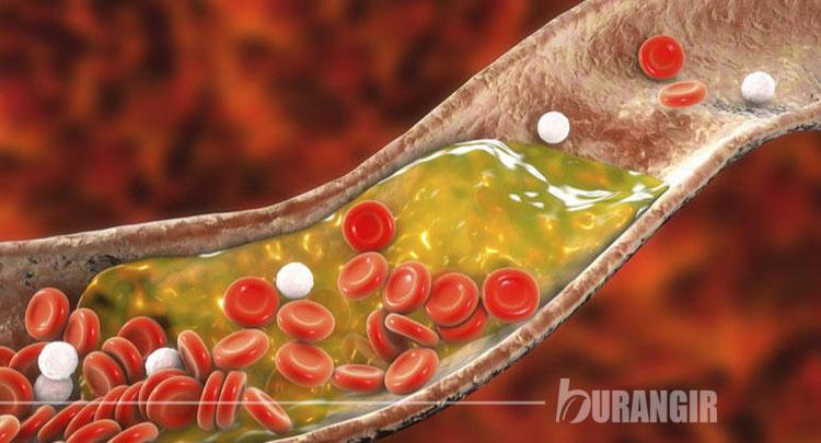 Makanan dan Obat Herbal Alami Penurun Kolesterol